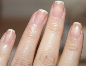 home-remedies-strong-long-nails