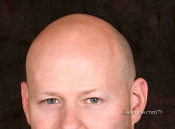 what are causes of baldness hairloss treatment