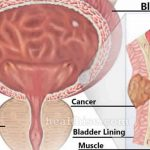 Cancer In The Bladder: Symptoms, Causes and Treatment