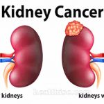 Kidney Cancer  Causes, Symptoms, Risks Factors and Survival Rate