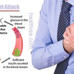 Diabetes Overview with Risk for Heart Attack and Stroke