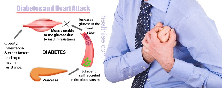 diabetes heart attack stroke