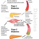 Is There a Cure for Diabetes that Diabetics Can Look Forward to?