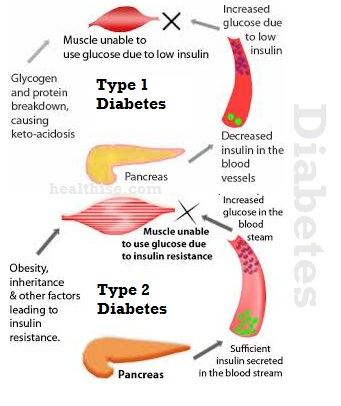 diabetes type 1 type 2 diabetic