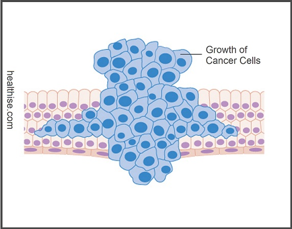 growth of cancer cells