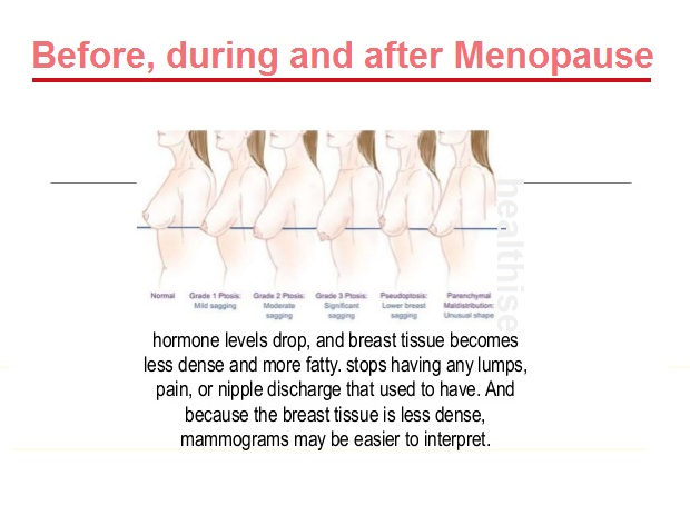 healthy breasts before after menopause
