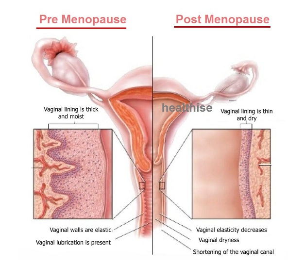 healthy vaginal atrophy menopause