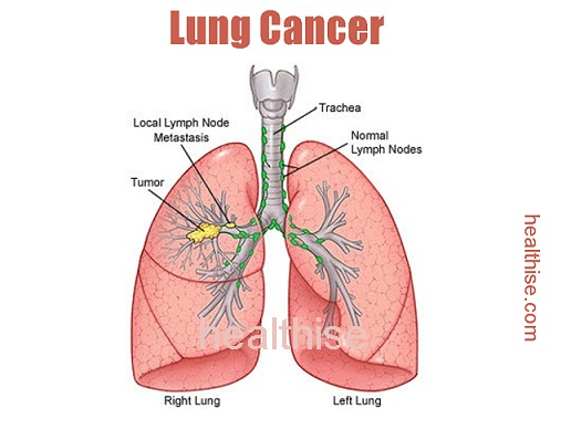 lung cancer causes treatment symptoms