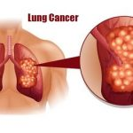 Lung Cancer, Causes, Diagnosis and Treatment