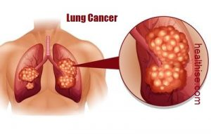 lung cancer treatment symptoms