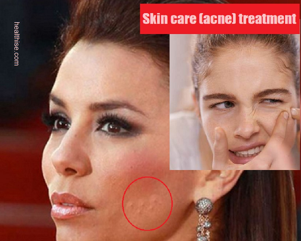skin care acne pimple cure treatment