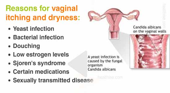 what are causes of vaginal infection