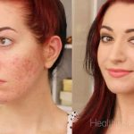 Use These Acne Skin Care Tips to Get Rid of Acne