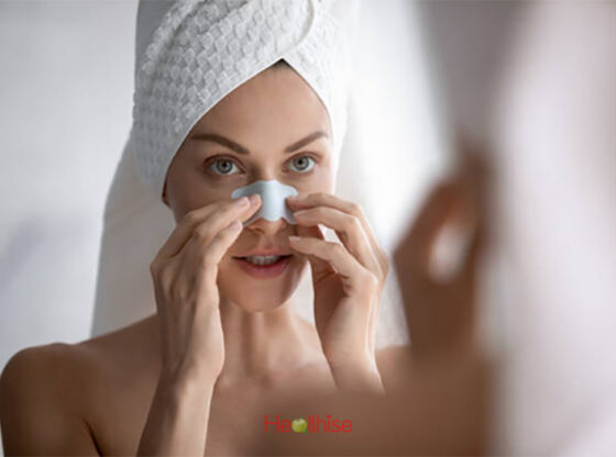 blackheads causes, home remedies, prevention, diet