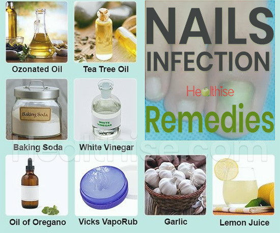 nails infection remedies nails growth strong fast treatment