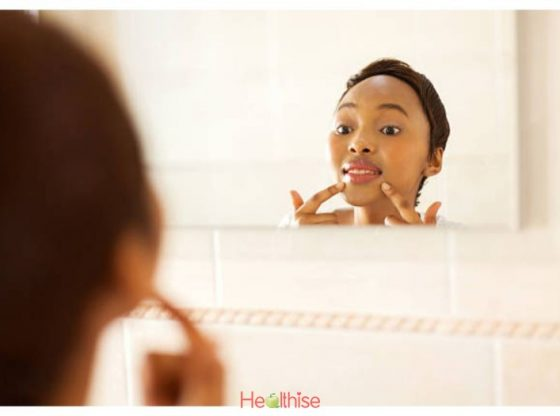 Acne Remedy What worked for my acne was the drugfree way part 2