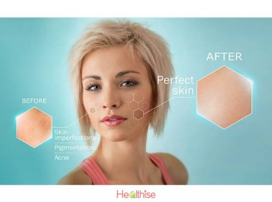 Acne Treatment Know These Facts About Acne