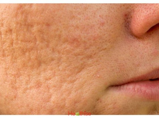 Acne Cure of Brushing Your Skin