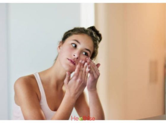 Best Natural Acne Treatments Get Rid Of The Acne Naturally