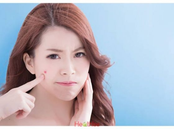 Acne Scar Treatments For Acne Free Face