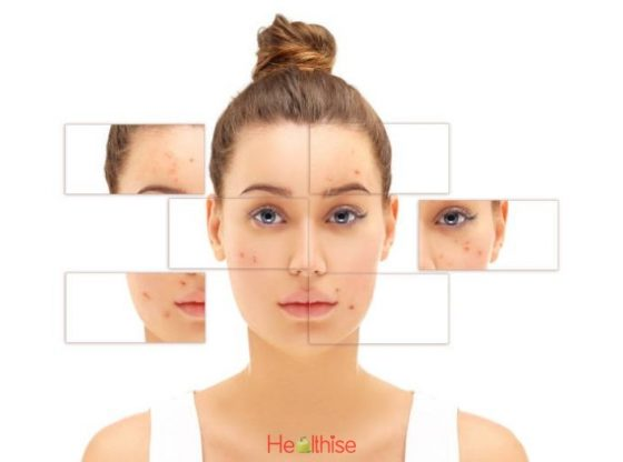 How Acne Starts and Ways to Cure it
