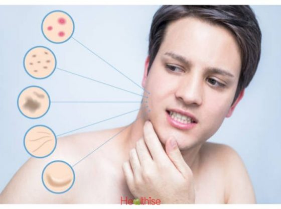 Acne Medication Research of Side Affects