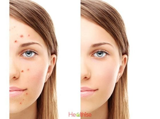 Acne Treatment Options For A Solution For Young Women